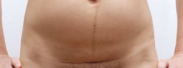 c-section scar at 6 weeks