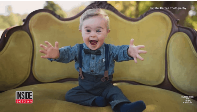 down syndrome toddler model